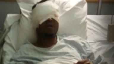 Affaire des yeux arrachés : le suspect sous mandat d'arrêt