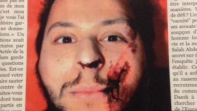 Le visage ensanglanté de Salah Abdeslam quelques minutes après son arrestation