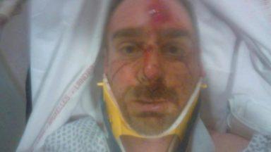 Bruxelles : percuté par un automobiliste qui a pris la fuite, un cycliste lance un appel à témoins