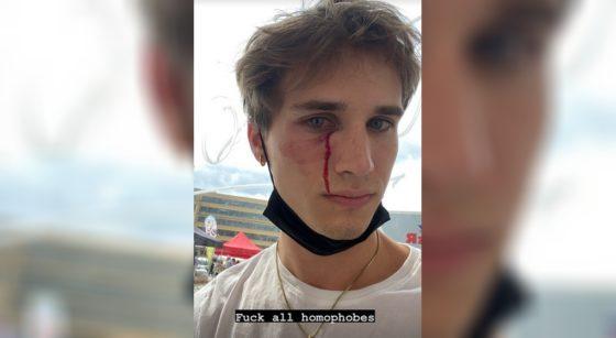 Agression homophobe Tom Van Isacker Instagram